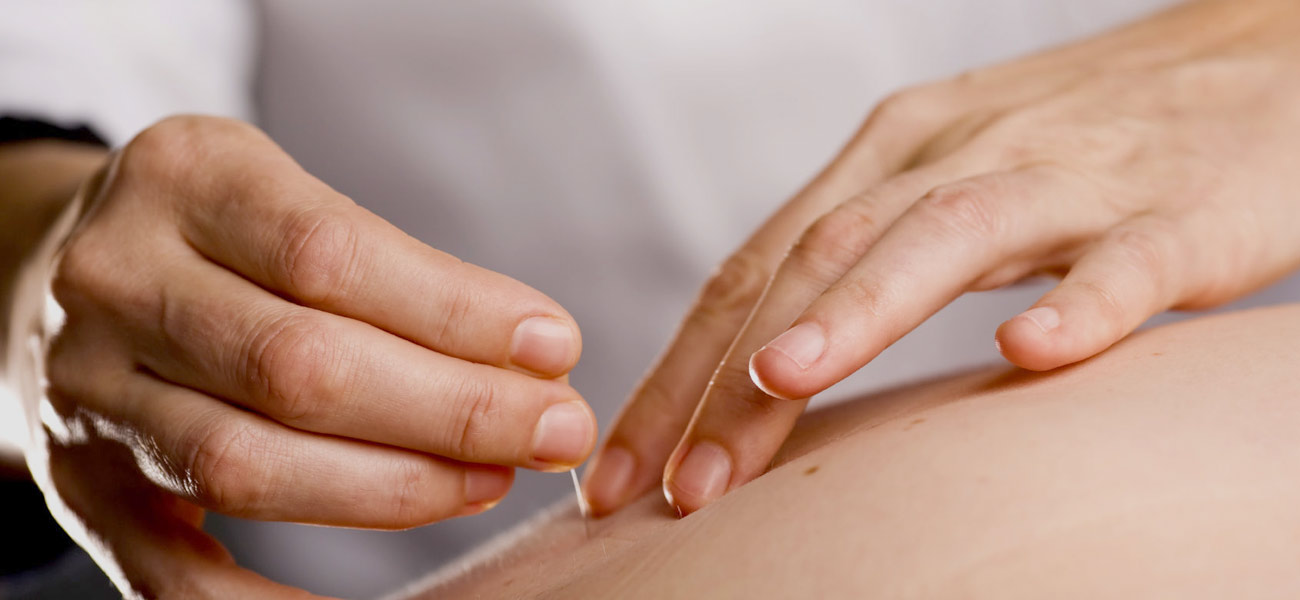 Acupuncture Brisbane